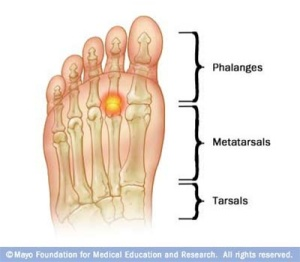 Image: http://www.healingfeet.com/blog/foot-care/forefoot-pain-could-be-capsulitis
